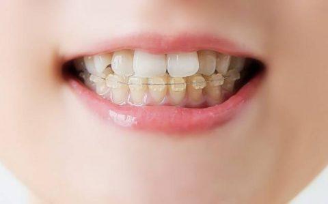 40代の歯列矯正*メリットとデメリット