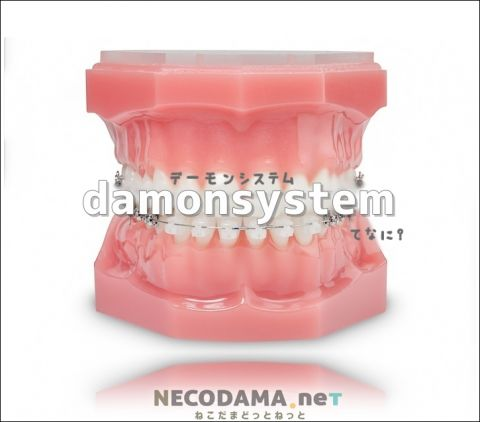 大人の歯列矯正費用と治療期間|『デーモンシステム』とは⁉