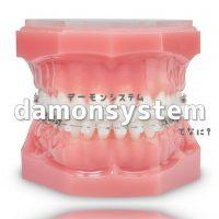 大人の歯列矯正費用と治療期間『デーモンシステム』とは⁉