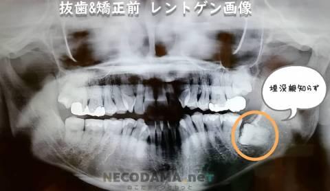 横向き埋没の親知らず抜歯7日~10日目: 抜糸後の回復経過の写真