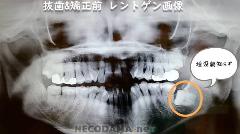抜歯前のレントゲン画像です