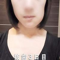 親知らず抜歯手術3日目 : 饅頭くらいの腫れ 顔面崩壊