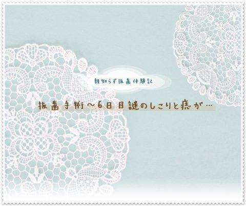 親知らず抜歯後 4日~6日目 しこりと痣(抜歯後の経過写真)