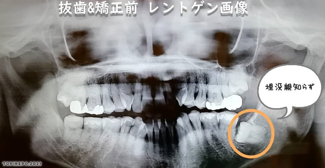 40代親知らず抜歯:手術当日レポ&痛みと費用