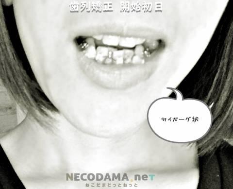 歯列矯正の痛みと食事は10日間がつらい!大人の歯列矯正記録