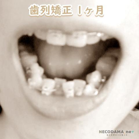 歯列矯正1カ月経過