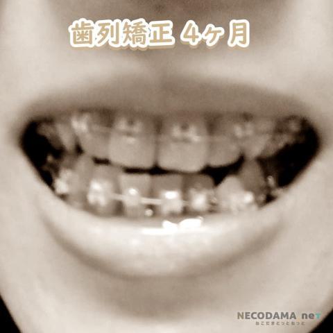 歯列矯正4カ月目