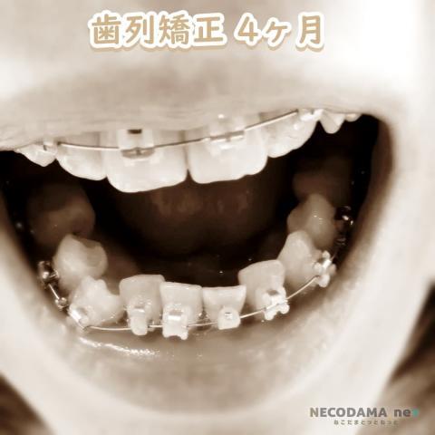 歯列矯正 4カ月目