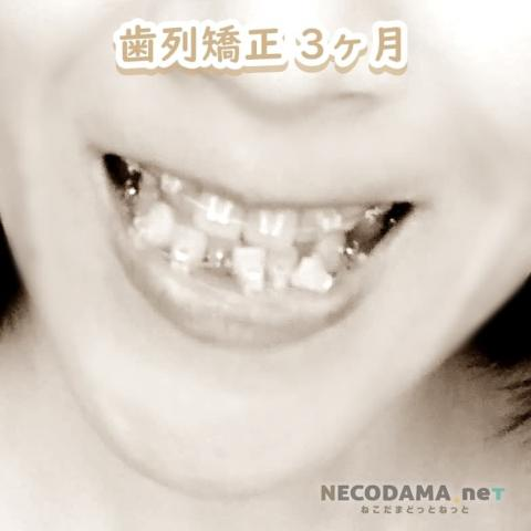 歯列矯正3カ月目の経過