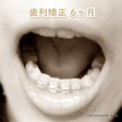 歯列矯正6カ月