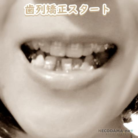 歯列矯正開始直後