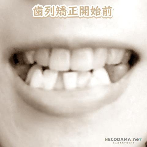 歯列矯正開始前