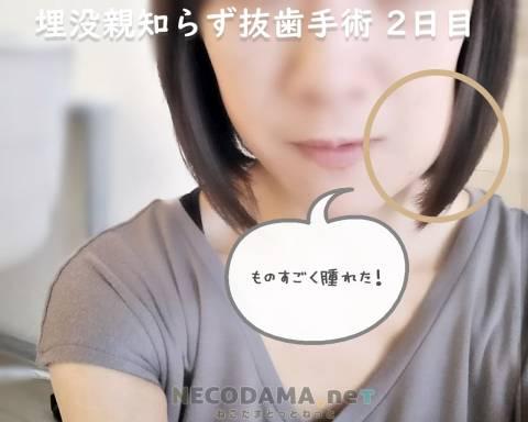 横向き埋没の親知らず抜歯 4日~6日目の写真レポ:しこり?痣?